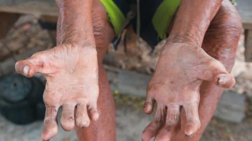 Braços e mãos dum homem.